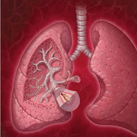 lungs-cross-section-copd-400x400[1]